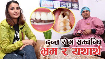 भिडियो स्टोरीः दन्त रोग सम्बन्धी भ्रम र यथार्थ