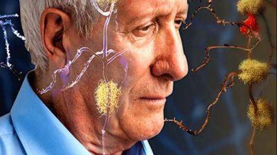 विश्व अल्जाइमर दिवस २०२१ : जान्नुहोस् कति खतरनाक छ यो…