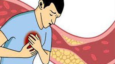 कोलेस्ट्रोल के हो ? यी हुन् कोलेस्ट्रोल नियन्त्रण राख्ने ६…