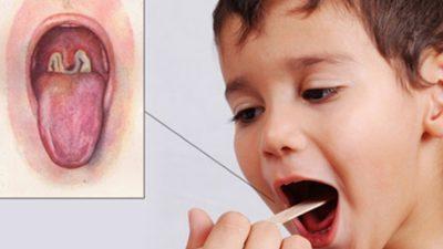 के हो डिप्थीरिया रोग ? कसरी बच्ने ?